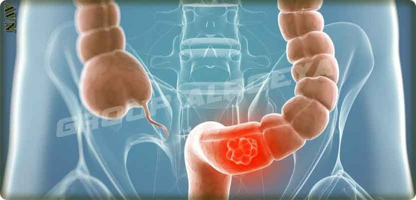 Some plants reduce the risk of bowel cancer