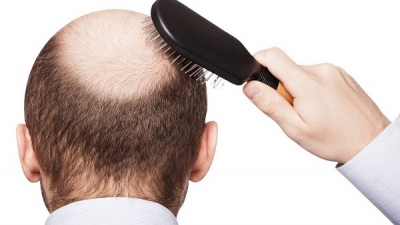Essential elements that contribute to hair loss